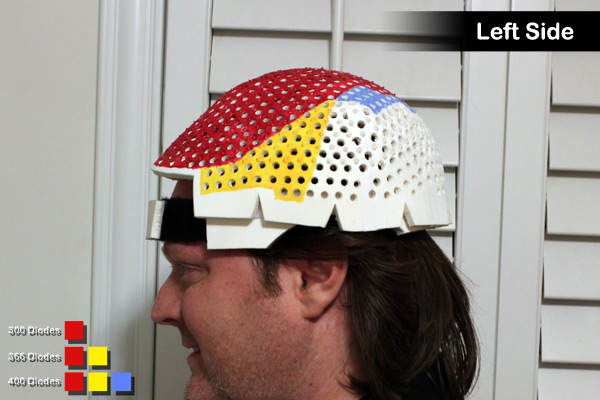 Left side view of a Laser Messiah LLLT device for hair loss on OverMachoGrande's head.