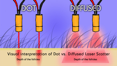 Illustration of diffused vs. dot lasers --you want DIFFUSED LASERS when you are fighting hair loss!