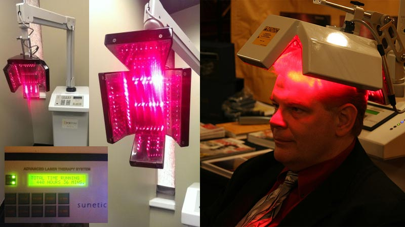 Laser Clinic with Sunetics G -the benchmark for hair loss!