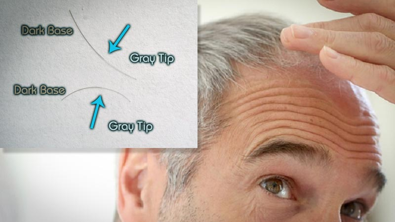 LLLT / Laser Therapy reduces gray hair!